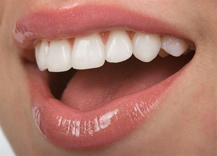 بعد زرع الاسنان