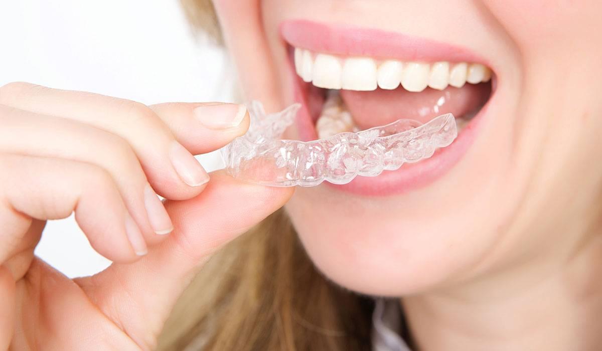 تكاليف زراعة الاسنان في تركيا
