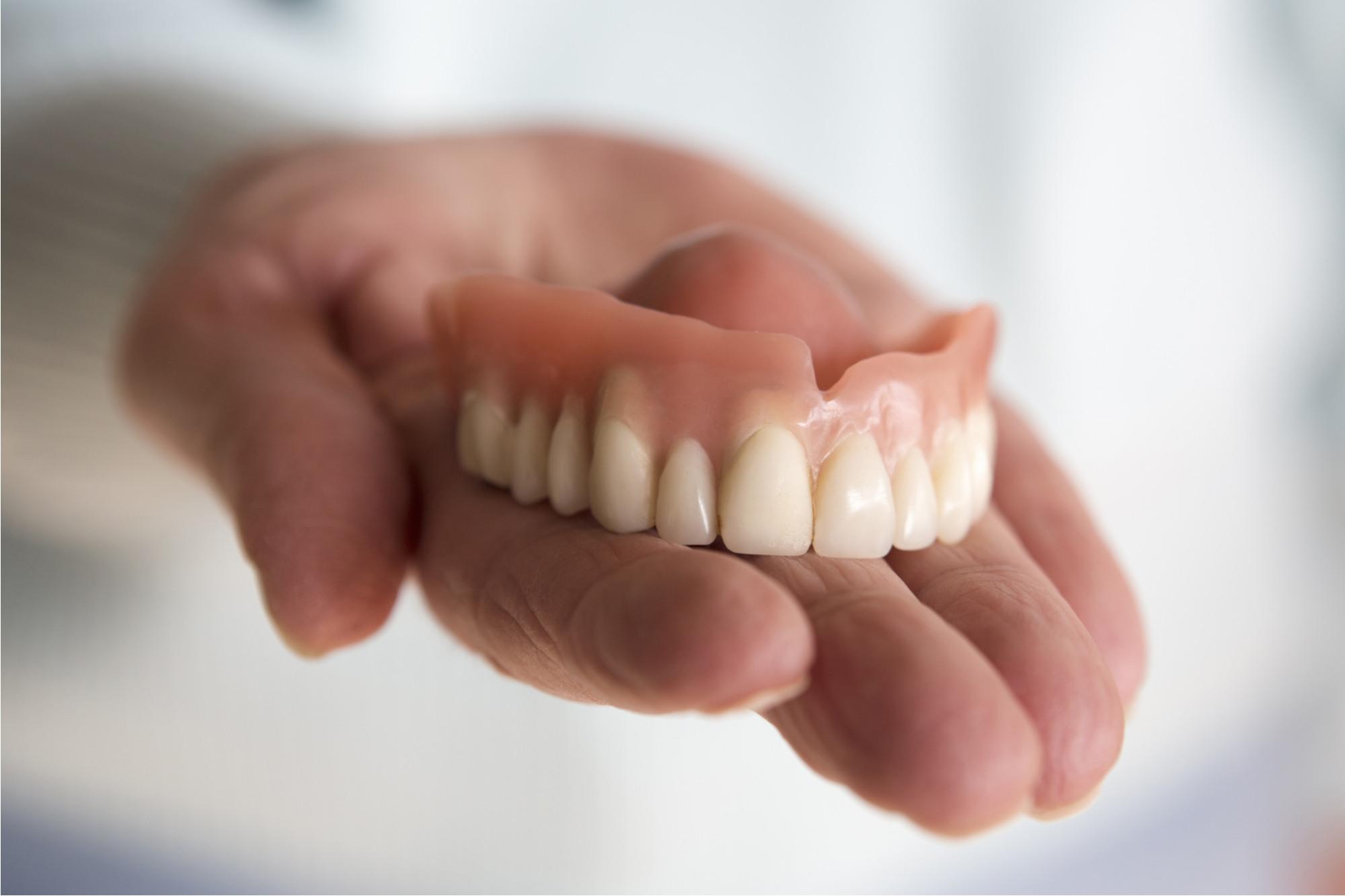 تكلفة زراعة الاسنان تركيا