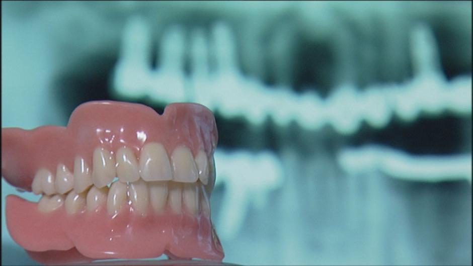 زراعة اسنان كوري