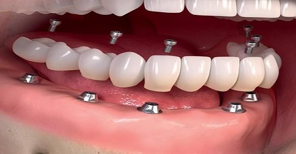 زراعة الأسنان في تركيا بالتفصيل
