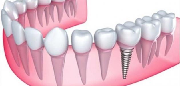 طريقة زراعة الاسنان في تركيا