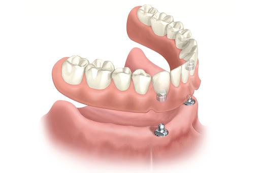 عمل اطباء الاسنان في تركيا