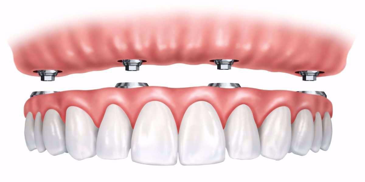 مخاطر زرع الاسنان