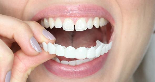 مدة زراعة الاسنان