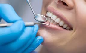 تكلفة تجميل الاسنان