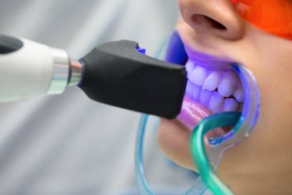 اسعار تبييض الاسنان بالليزر في تركيا.. أقل تكلفة لأبيض أسنان