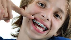 اسعار تلبيس الاسنان في تركيا