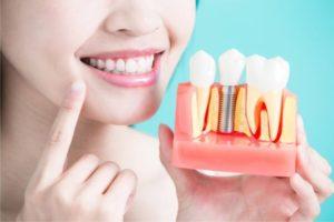 تكلفة زراعة الأسنان في تركيا