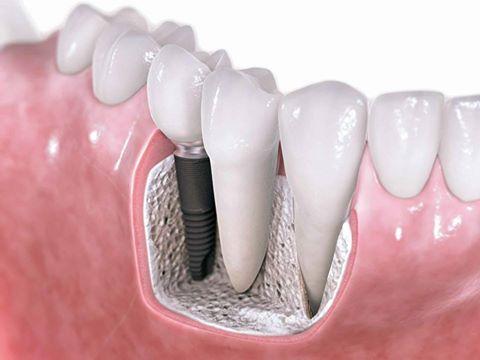 الم بعد تركيب الاسنان الثابته