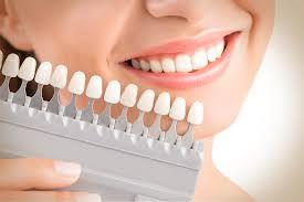 الوان تقويم الاسنان