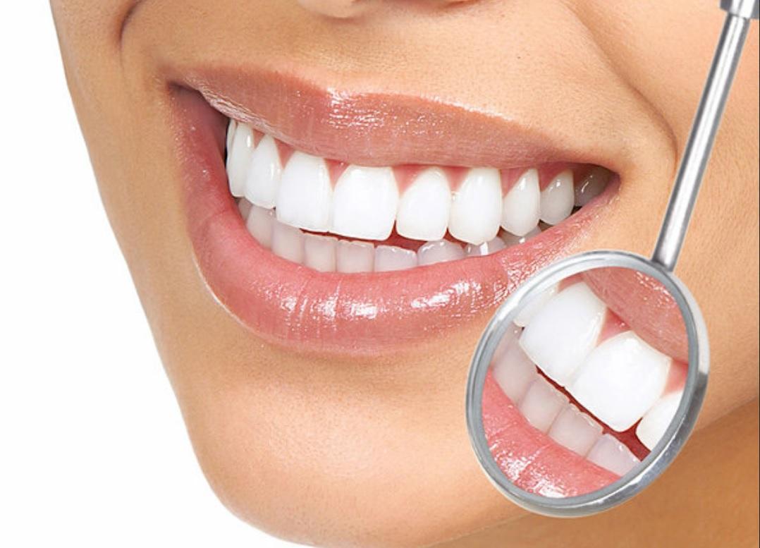 انواع تجميل الاسنان