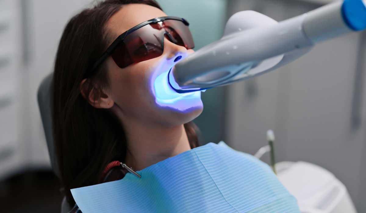 تبييض الاسنان بالليزر اسعار