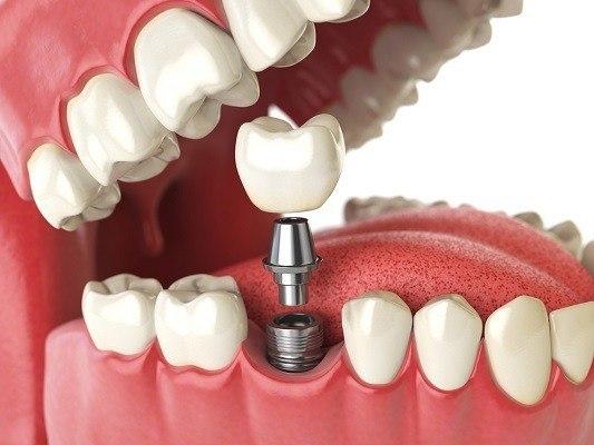 تركيب الاسنان الامامية الثابتة