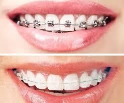 تركيب تقويم الاسنان