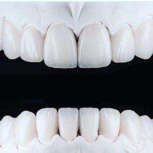تلبيس الاسنان الاماميه بالصور