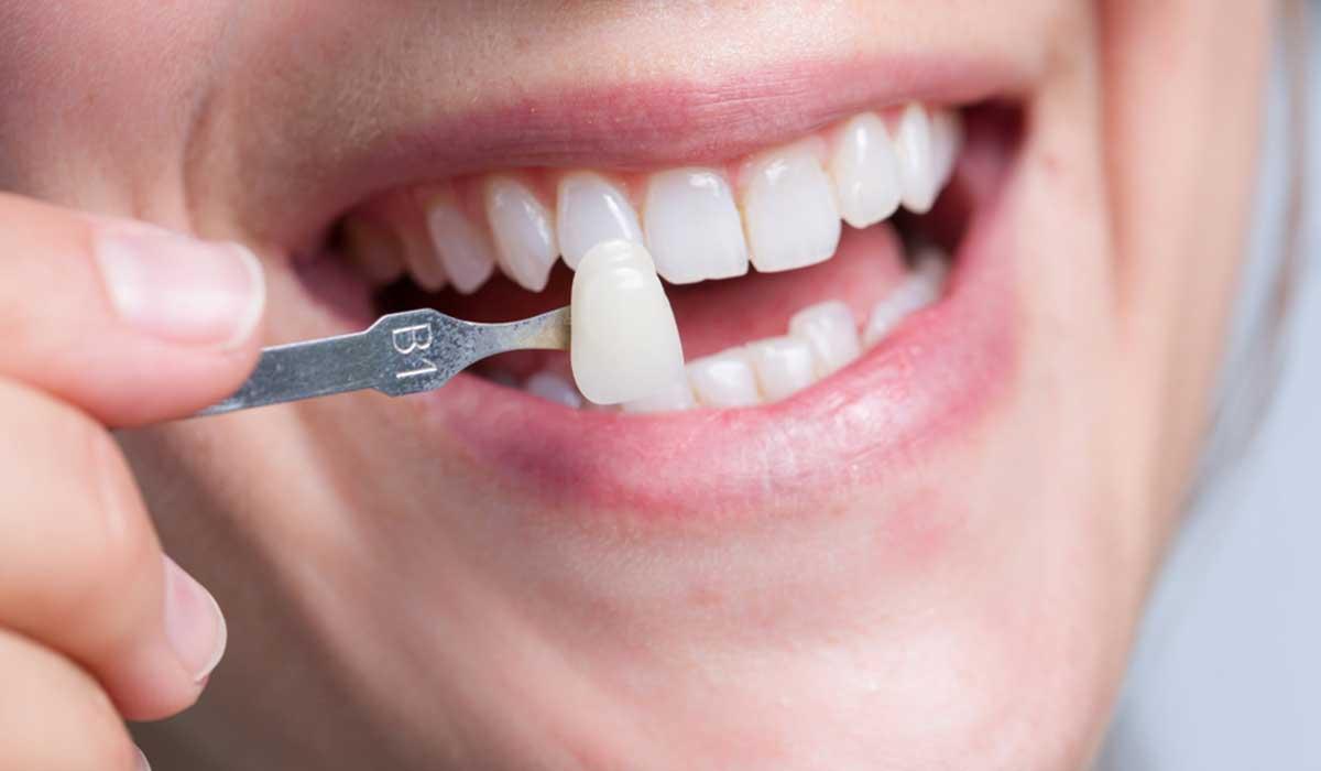 اسعار عدسات الاسنان في تركيا