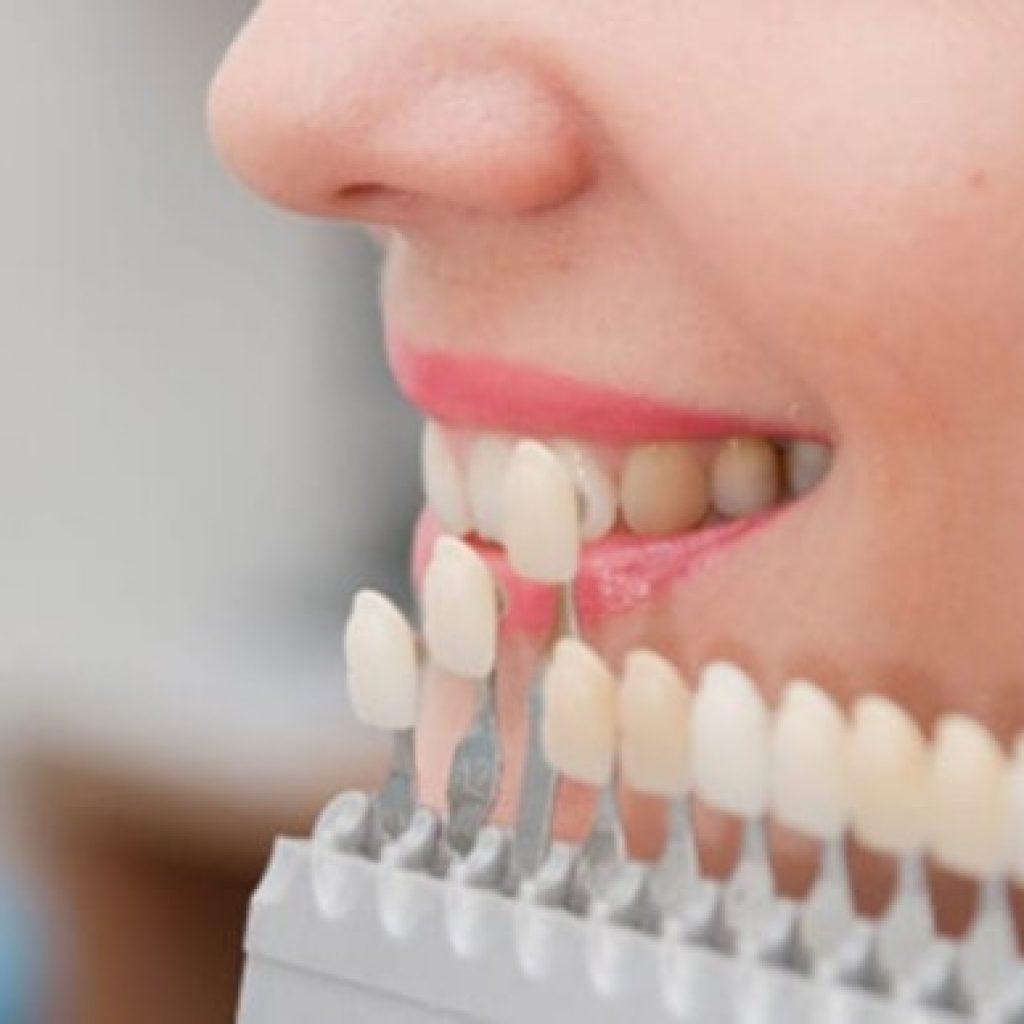 سعر تركيب الاسنان في تركيا