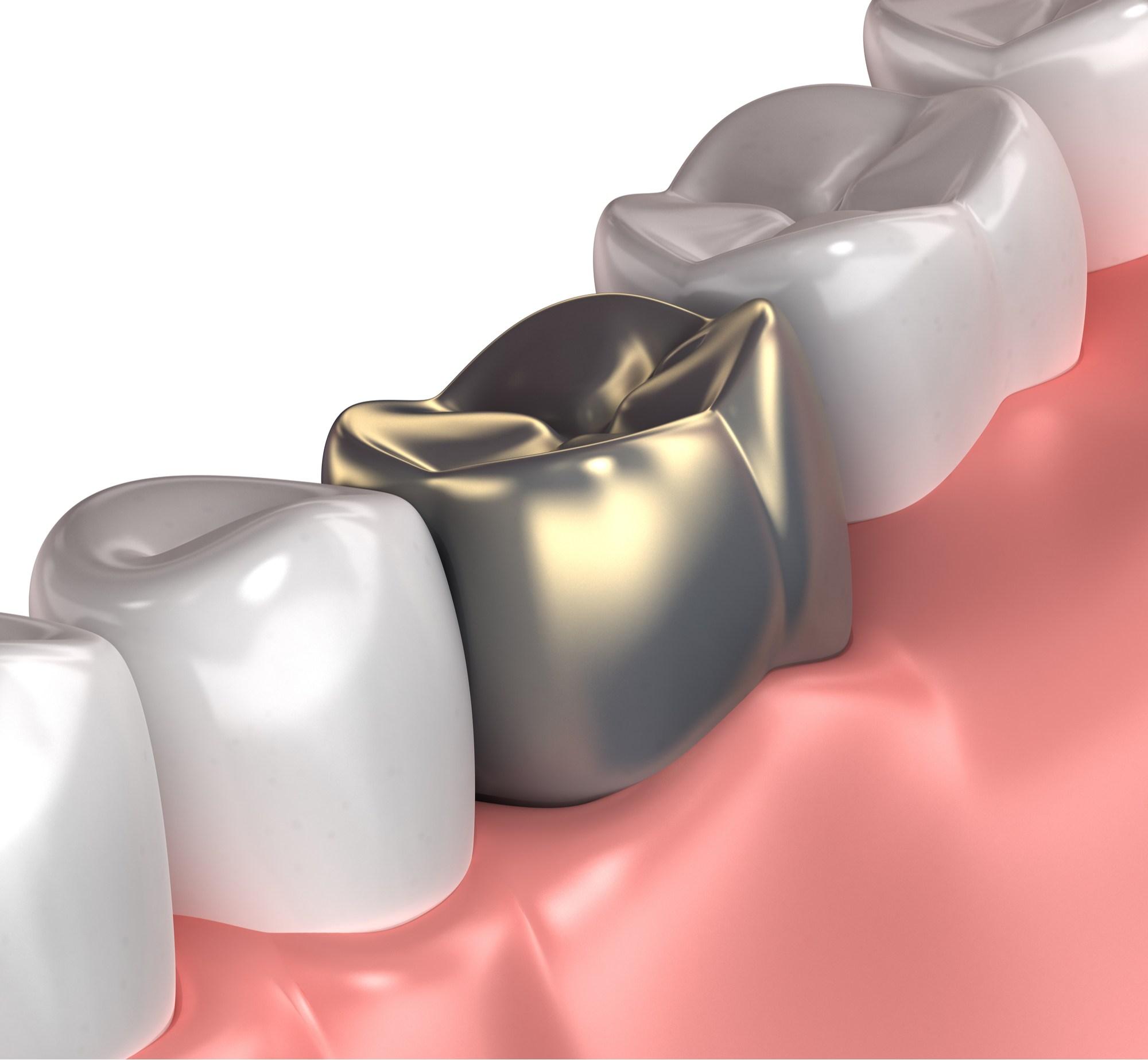 سلبيات عدسات الاسنان