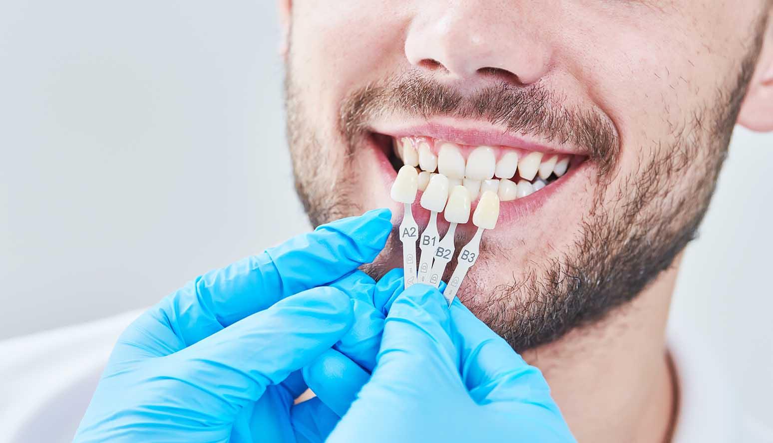 مراكز تجميل الاسنان في تركيا