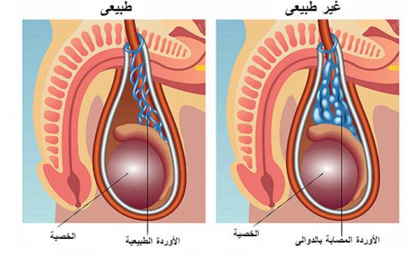 إجراء قسطرة جراحة الدوالي في الخصية