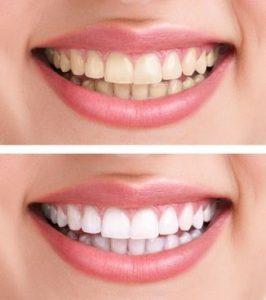 كم تكلفة تلبيس الاسنان الزيركون