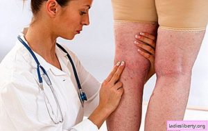 ماهو علاج الدوالي