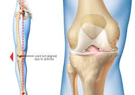 علاج خشونة الركبة في تركيا