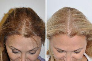 تجربتي في زراعة الشعر للنساء