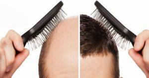 تقوية نمو الشعر