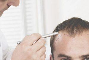 خطوات زراعة الشعر