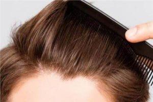 زراعة الشعر بالليزر في تركيا