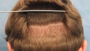 سعر زراعة الشعر
