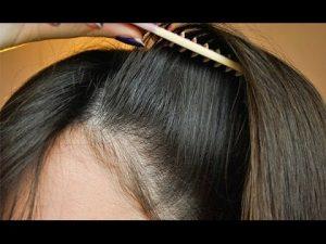 عروض زراعة الشعر في تركيا