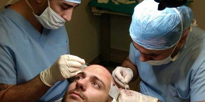 عمليات زراعة الشعر في تركيا اسطنبول