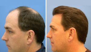 عملية زراعة الشعر