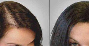 لزراعة الشعر في تركيا