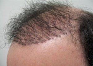 مجال زراعة الشعر