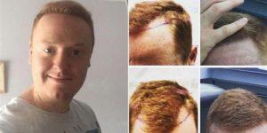 أشهر أطباء زراعة الشعر في اسطنبول