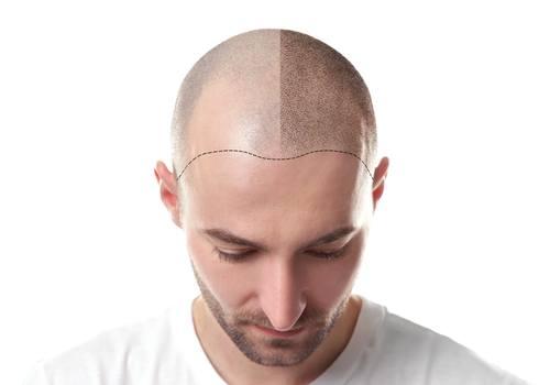 أطباء زراعة الشعر في اسطنبول