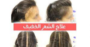 افضل دكاترة زراعة الشعر في تركيا
