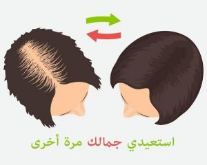 افضل عروض زراعة الشعر في تركيا