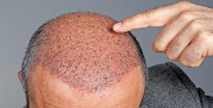 افضل مستشفى زراعة الشعر في اسطنبول