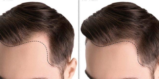 افضل مستشفيات زراعة الشعر في اسطنبول