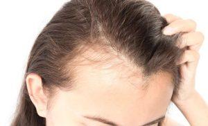 خطوات زراعة الشعر في اسطنبول
